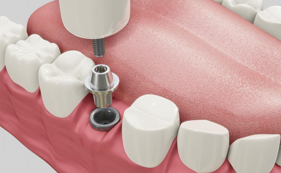 Periimplantitis, causas y tratamiento - Clínica Vallina - Tu clínica dental en Mieres