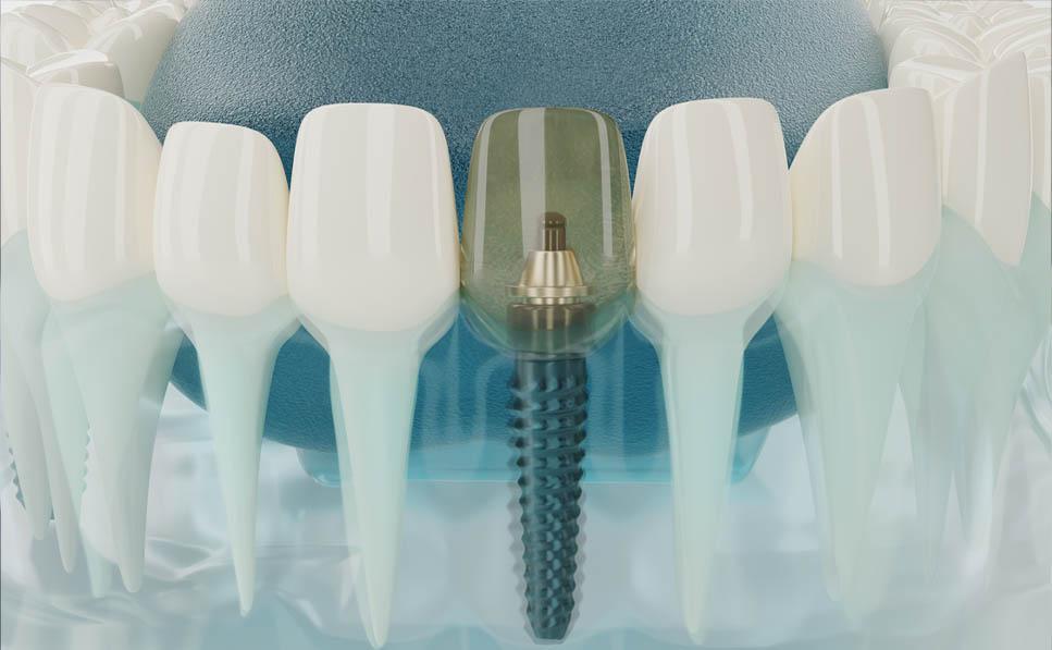 gracias a la osteointegración es posible fijar los implantes dentales al hueso